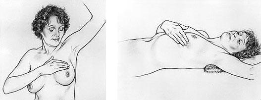 Samopregled dojke - treći korak