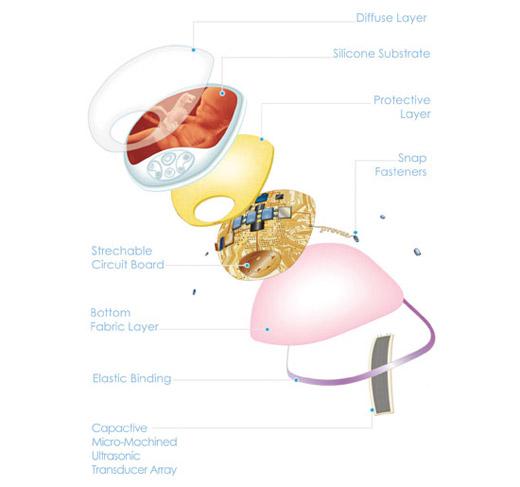 Prevue 4d ultrazvuk - moguća primena u prenatalnoj dijagnostici?