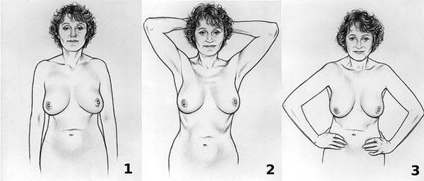 Samopregled dojke - prvi korak
