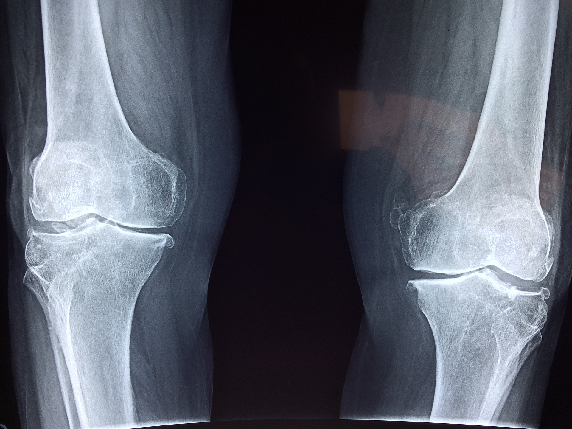 kolena